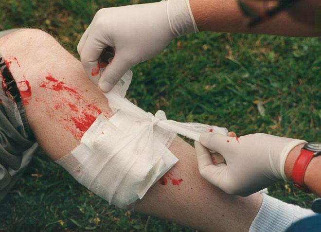 Kleiner Lebensretter - Blutungen